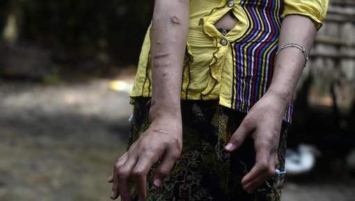 In this picture taken on September 20, 2016 San Kay Khine, a 17-year-old Myanmar child slave shows her scarred arms and twisted fingers whilst recovering in her family's village in Baw Lone Kwin, Kawmu township located outside Yangon.